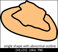 Click image for larger version.  Name:abnormal outline.png Views:10 Size:14.2 KB ID:125737